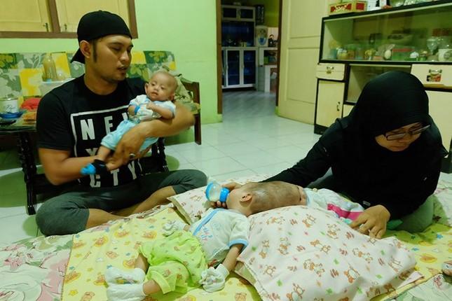 Hai bé gái 4 tháng tuổi bị dính liền đầu thương tâm - ảnh 2