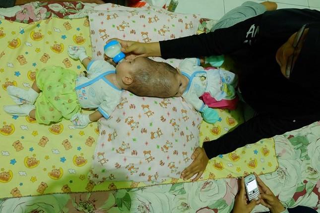 Hai bé gái 4 tháng tuổi bị dính liền đầu thương tâm - ảnh 3