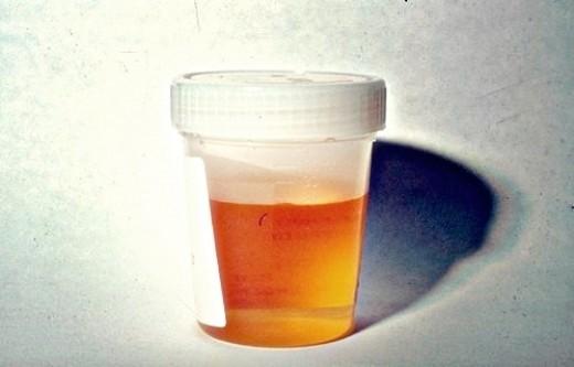 Mẹo đoán sức khỏe qua màu sắc nước tiểu - anh 1