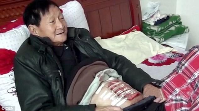 Kinh ngạc cụ già 70 tuổi bị sỏi mật to như quả dưa hấu - anh 1