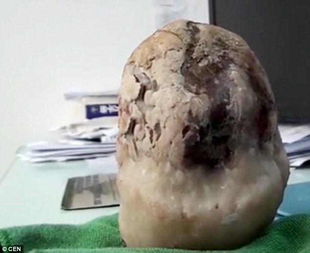 Kinh ngạc cụ già 70 tuổi bị sỏi mật to như quả dưa hấu - anh 2