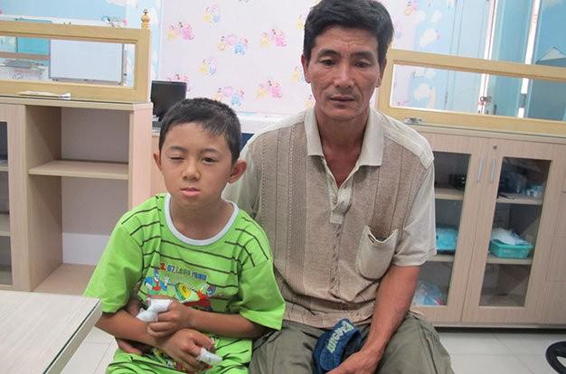 Nổ đồ chơi Trung Quốc, bé trai 11 tuổi cụt 3 ngón tay - anh 1