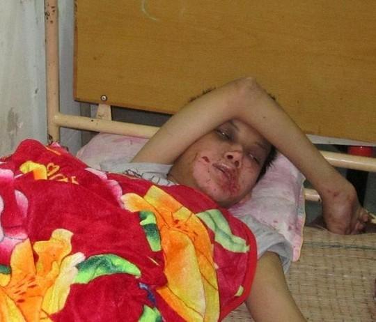 Khởi tố gã hàng xóm hành hạ bé trai khuyết tật trong khách sạn - anh 2