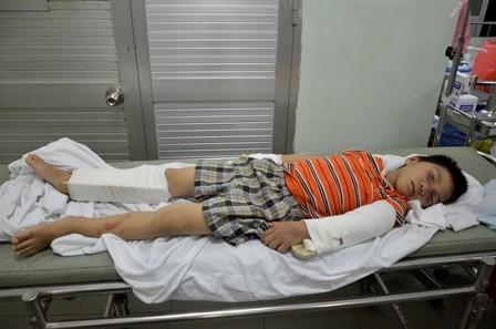Bé trai 6 tuổi bị người tình của mẹ đánh gãy tay chân - anh 1
