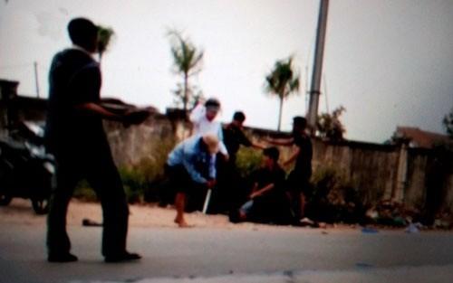 Thanh Hoá: 2 công an phường bị côn đồ dùng dao, búa truy sát - anh 1