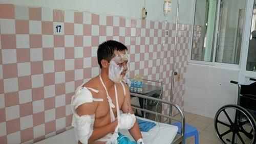Đà Nẵng: Cháy nổ kho hoá chất, 17 chiến sĩ PCCC bị thương - anh 3