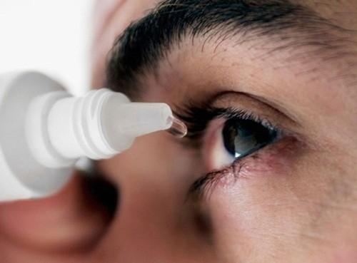 Những điều không thể bỏ qua về bệnh đau mắt đỏ - anh 2