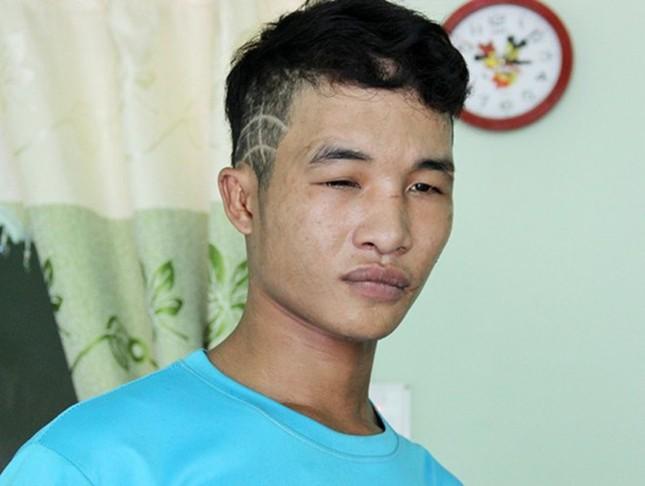 Hào Anh bị bắt vì cạy cửa vào nhà dân trộm máy vi tính - anh 1