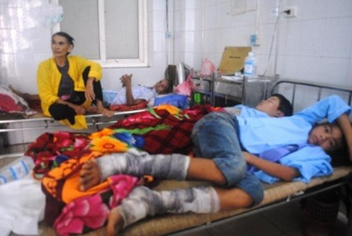 Thanh Hoá: 75 người bị bỏng do đốt lửa trại - anh 2