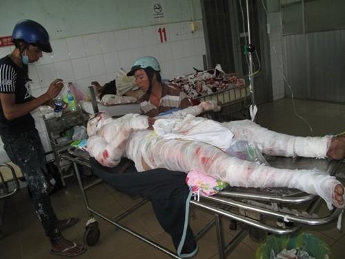 Kiên Giang: Nổ bình gas khiến 3 người nguy kịch - anh 2
