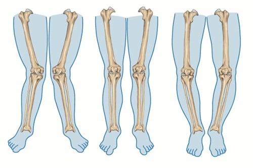 Cách chữa chân vòng kiềng cho trẻ - anh 1