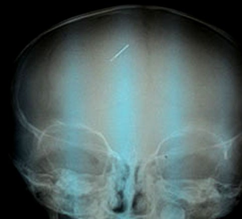 Bé trai 3 tuổi bị kim khâu đâm vào đầu - anh 1