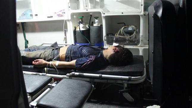 Một trong số nam thanh niên trong nhóm bị đánh nhập viện.