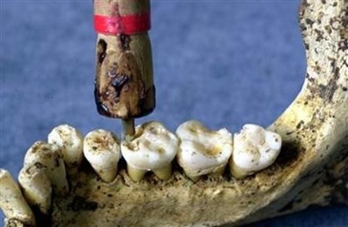 Kinh ngạc những phát minh từ thời cổ đại - anh 15
