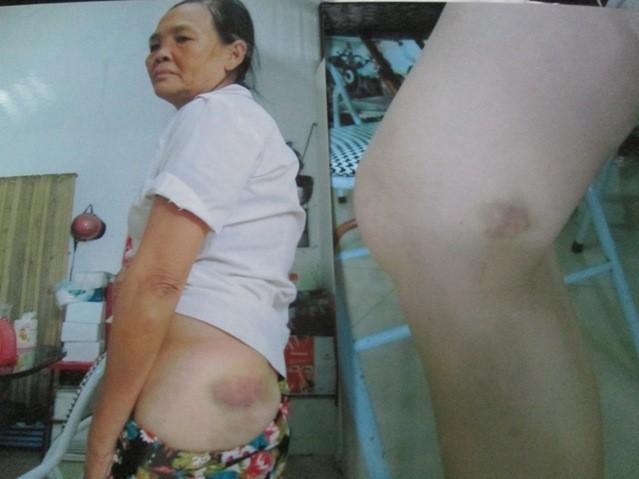 Nỗi lòng của con dâu bị mẹ chồng 86 tuổi đánh đến nhập viện - anh 2
