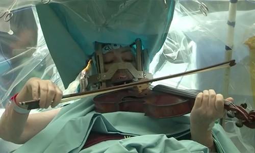 Bệnh nhân vừa phẫu thuật não vừa chơi đàn violin - anh 1