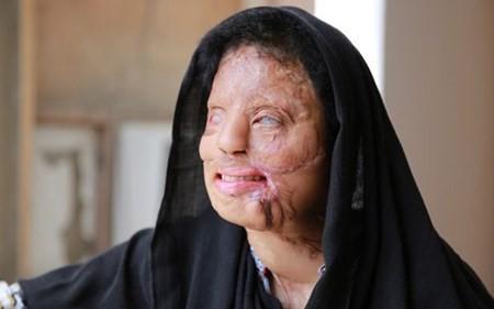Sonali Mukherjee, từ cô gái bị tạt a-xit thành triệu phú truyền hình - anh 2