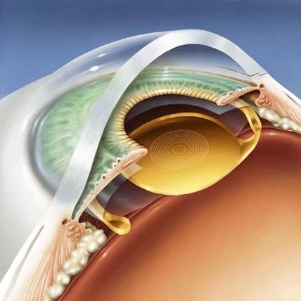 Bác sĩ người Mỹ gốc Việt và phát minh cho người bệnh về mắt có '1-0-2' - anh 2