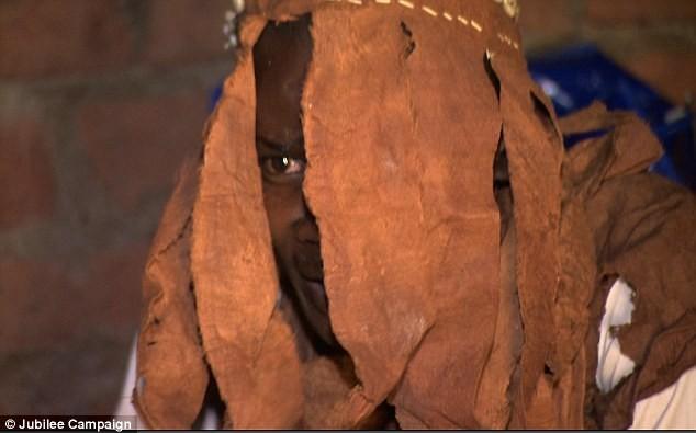 Kinh hoàng tội ác chặt tay chân trẻ em để hiến tế ở châu Phi - anh 2