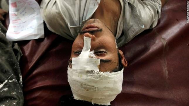 Toàn cảnh động đất 7,5 độ Richter rung chuyển Nam Á, ít nhất 229 người chết - anh 4
