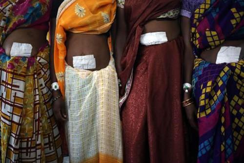 Ấn Độ: Thuốc triệt sản có thể chứa chất diệt chuột - anh 1