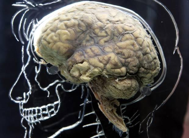 Hội chứng Shellshock và những tổn thương não bộ của lính chiến trận - anh 1