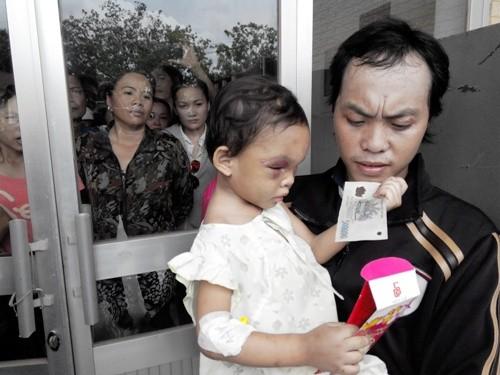 Vụ cháu bé 4 tuổi bị hành hung: Cha ruột bé Ngân mong làm sáng tỏ vụ việc - anh 1