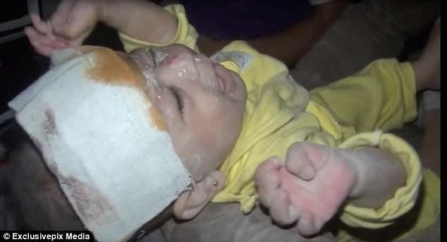 Bé gái sơ sinh sống sót thần kỳ sau vụ không kích ở Syria - ảnh 1