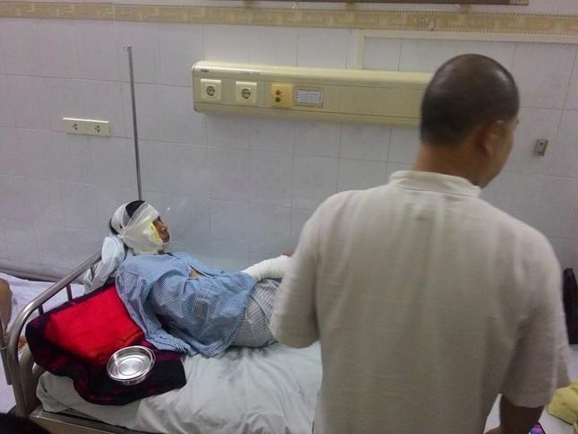 Vụ nổ trạm biến áp: Hai nạn nhân đang nguy kịch - ảnh 1